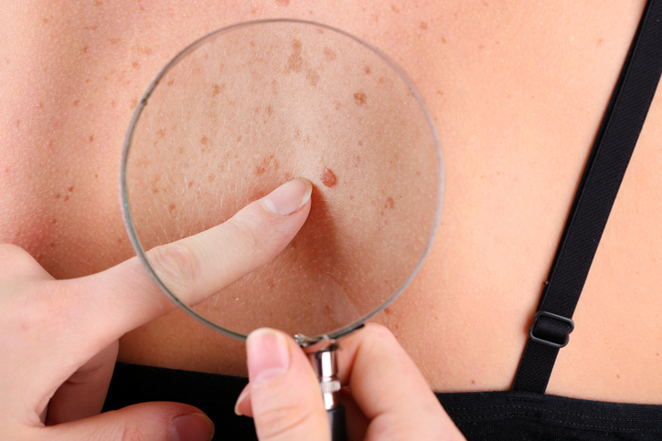 Dermatologist examines birthmark of patient, close up